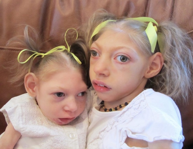 children-born-with-microcephaly